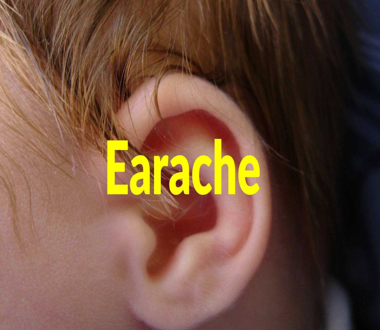 10 Home Remedies for Earcache