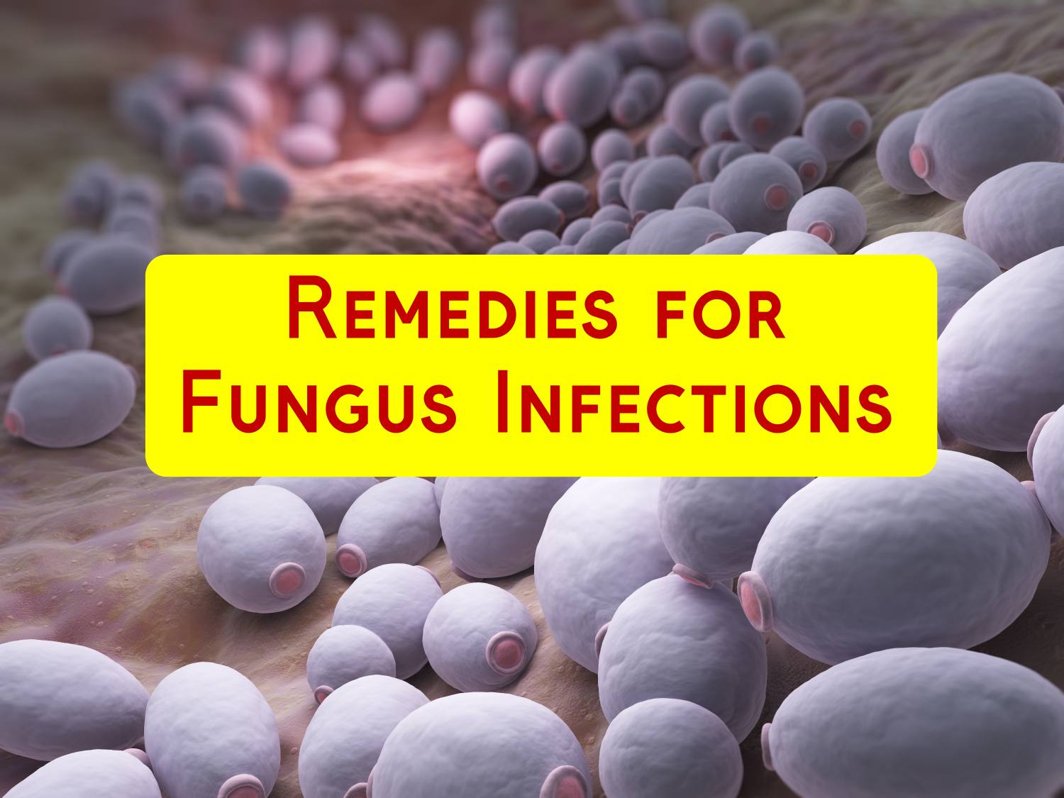 10 Home Remedies for Fungus Infection
