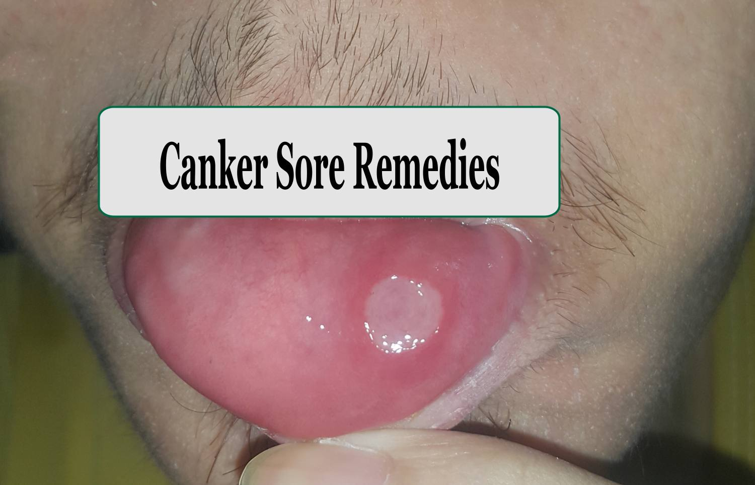 10 Home Remedies for canker sores