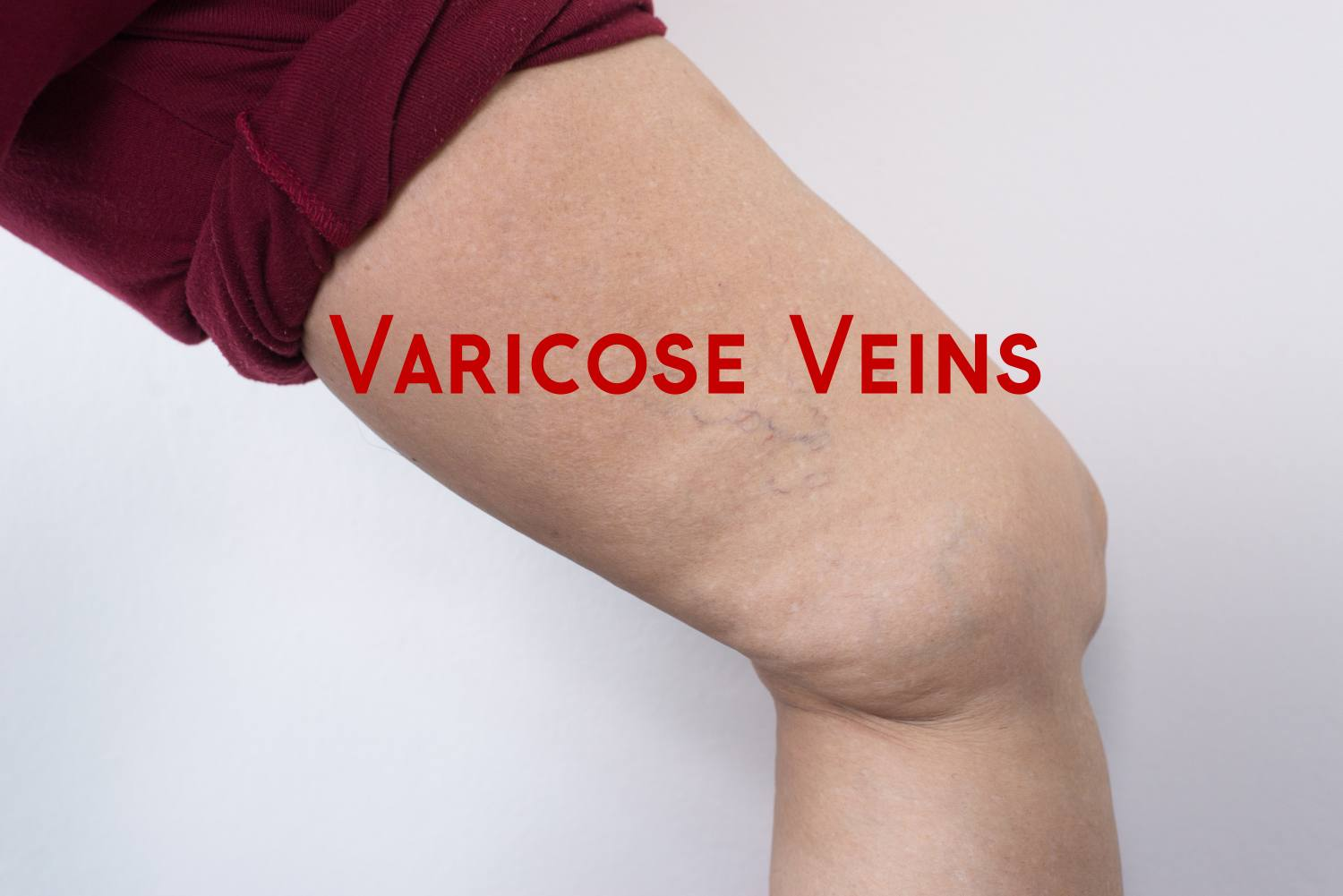 !0 Home Remedies for Varicose Veins