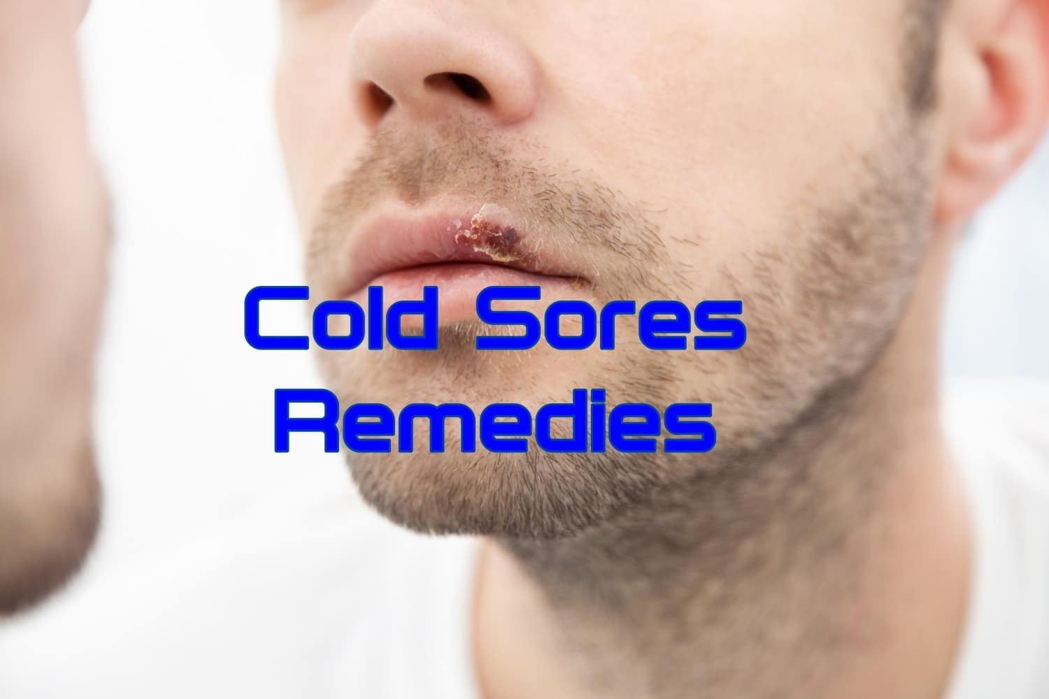 10 Home Remedies for Cold Sores
