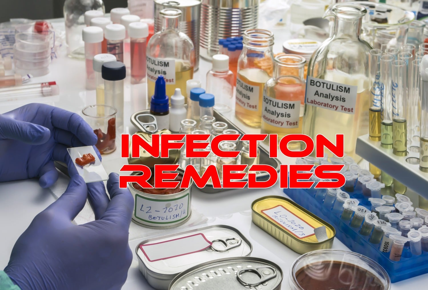 10 Home Remedies for Infections