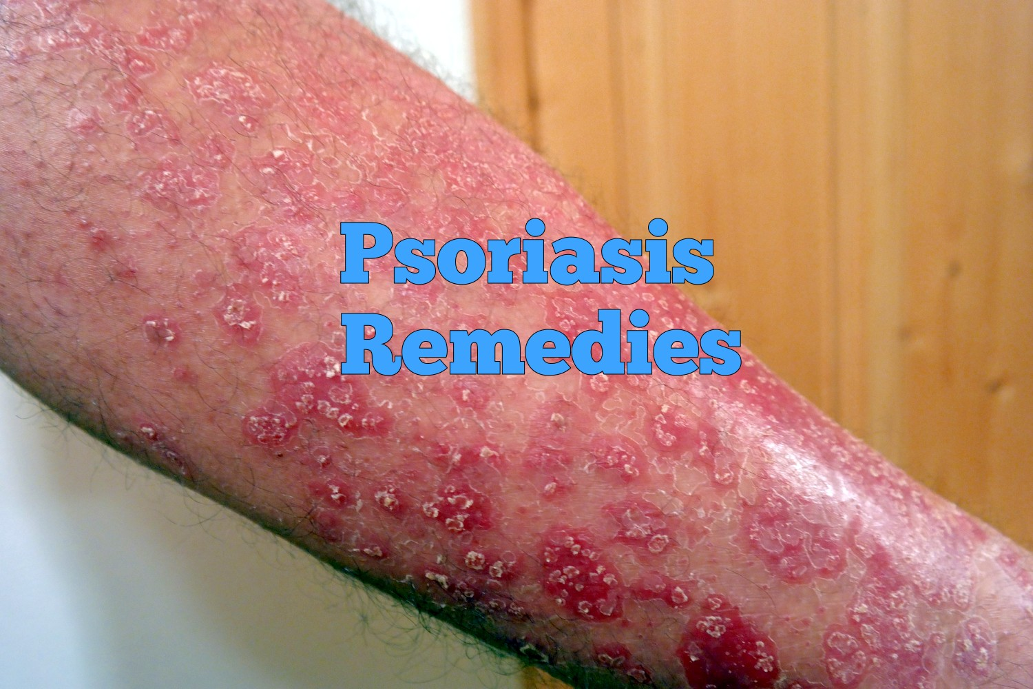 10 Home Remedies for Psoriasis