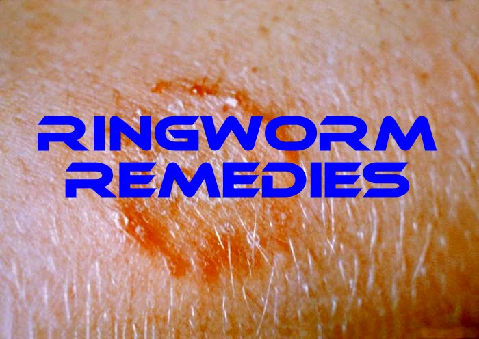 10 Home Remedies for Ringworm