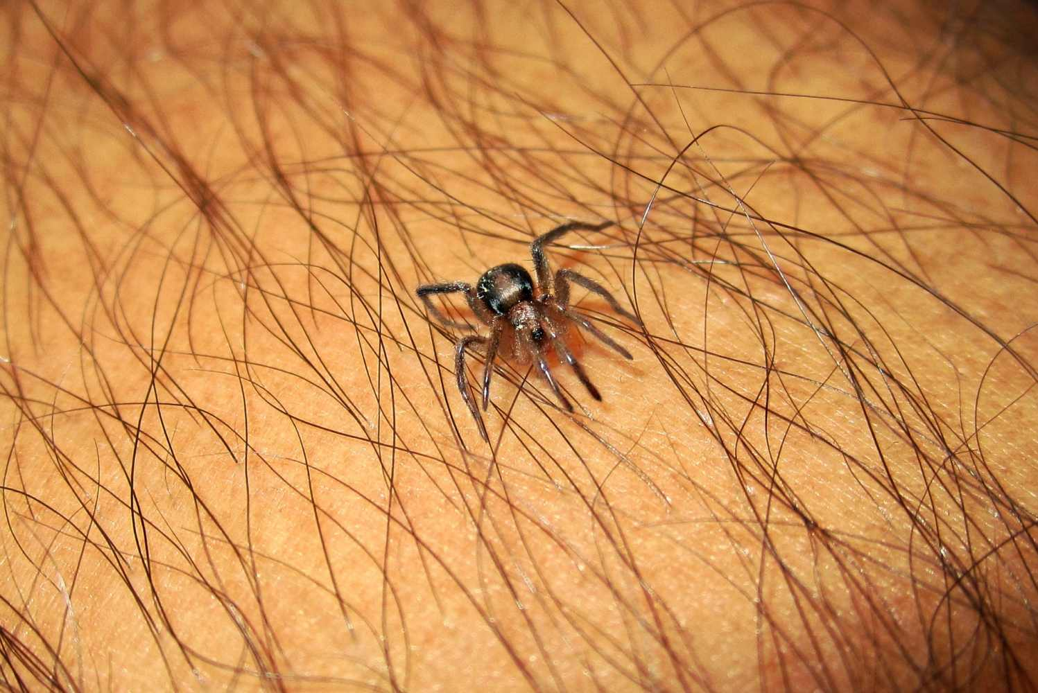 10 Home Remedies for Spider Bites
